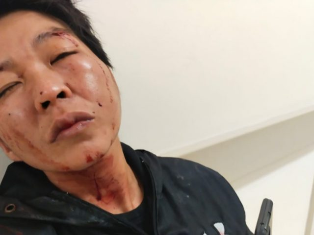 Aniyaya Majikan Berdarah-darah Andi Gunardi Dilaporkan ke Polda Metro Jaya